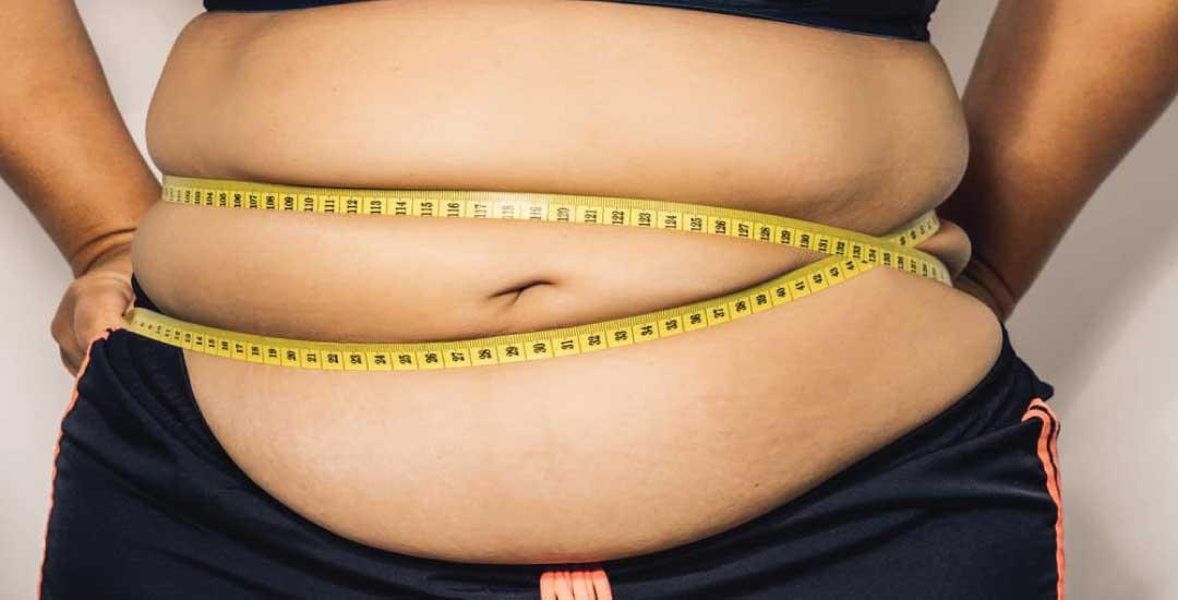 Operasi Bedah Penyakit Obesitas